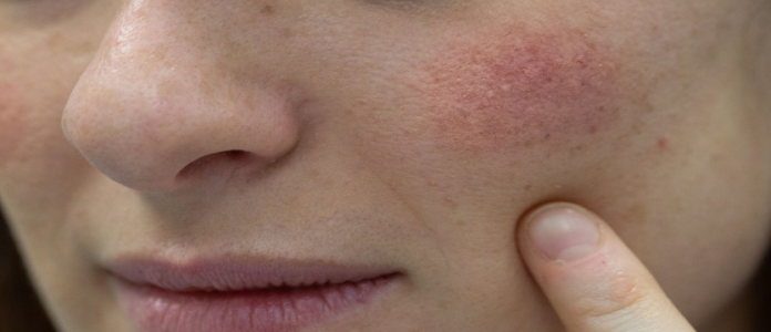 PREVENCIÓN. Las manchas en la piel son la causa más común al exponerse al medio ambiente sin protección solar.