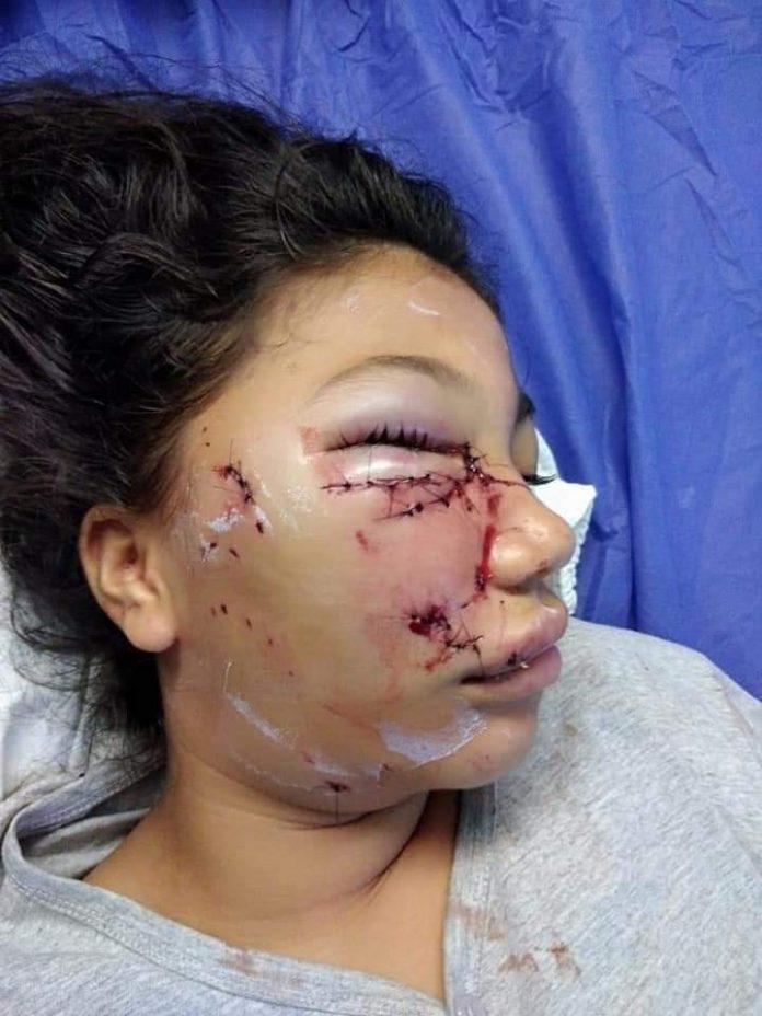 COLABORACIÓN: Los familiares de la menor de edad que fue atacada por un perro piden a las autoridades la ayuda para que sea trasladada a otra casa de salud.