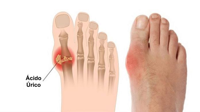 La elevación del ácido úrico puede ocasionar dolor en las partes del cuerpo.